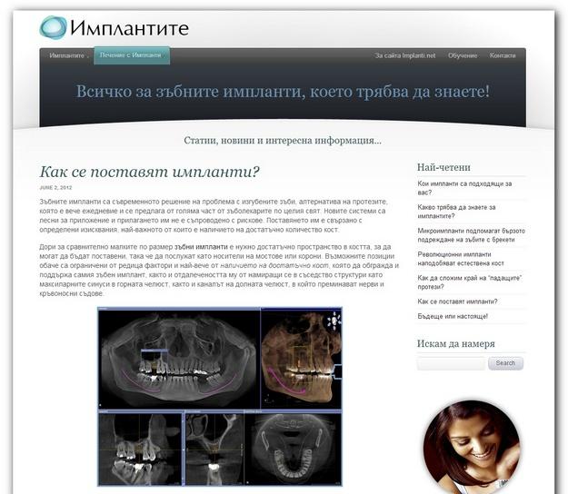 Implanti.net - цялата информация за лечение със зъбни импланти