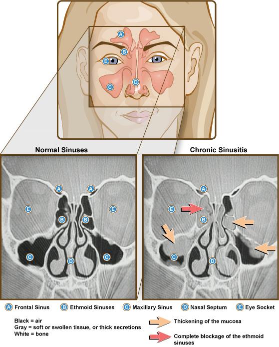 a sinusproblémák fogyást okozhatnak